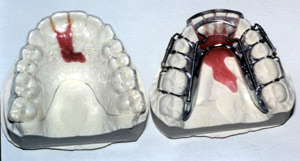 invisiblealigners